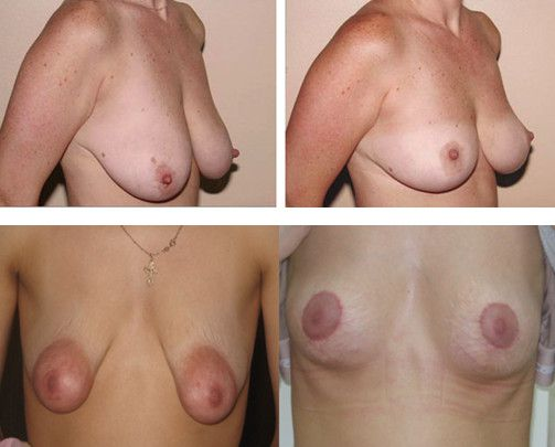Периареольная мастопексия 2