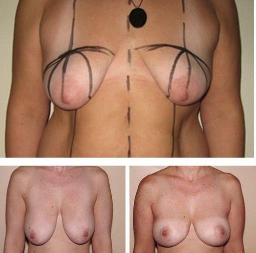 Периареольная мастопексия