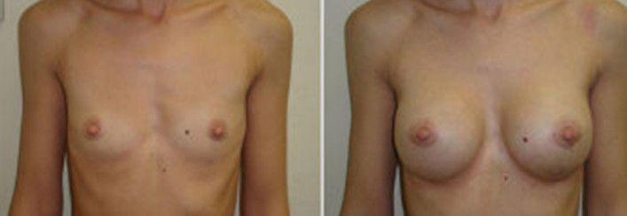 Увеличению груди липофилингом 2 - фото до и после