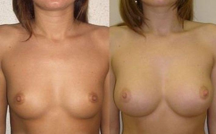 Увеличению груди липофилингом 3 - фото до и после