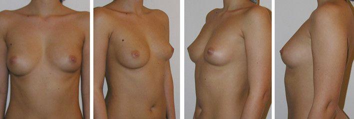 Увеличению груди липофилингом 4 - фото до и после