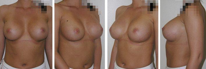 Увеличению груди липофилингом 5 - фото до и после