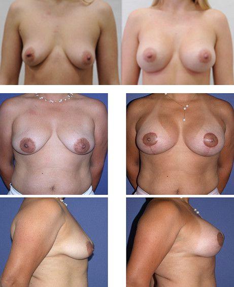 Вертикальная мастопексия 2