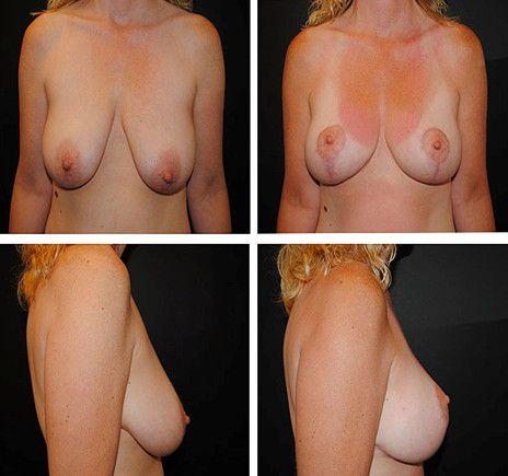 Якорная мастопексия 2