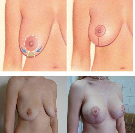Якорная мастопексия
