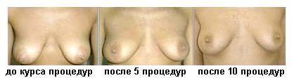 эффективность подтяжки груди нитями