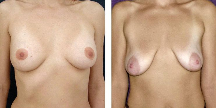 грудь до и после родов у девушки