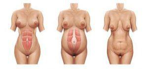 грудь провисает после родов