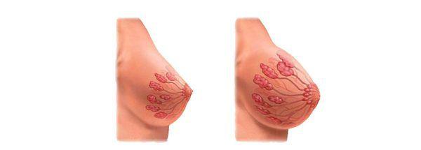 рост груди при беременности