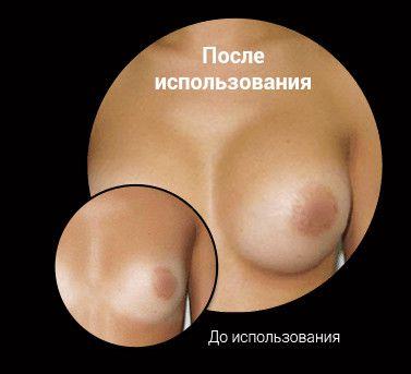 Занятия спортом после пластики груди